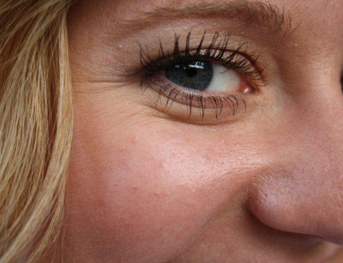 Hoe kun je rimpels op je voorhoofd of bovenlip voorkomen of verwijderen?